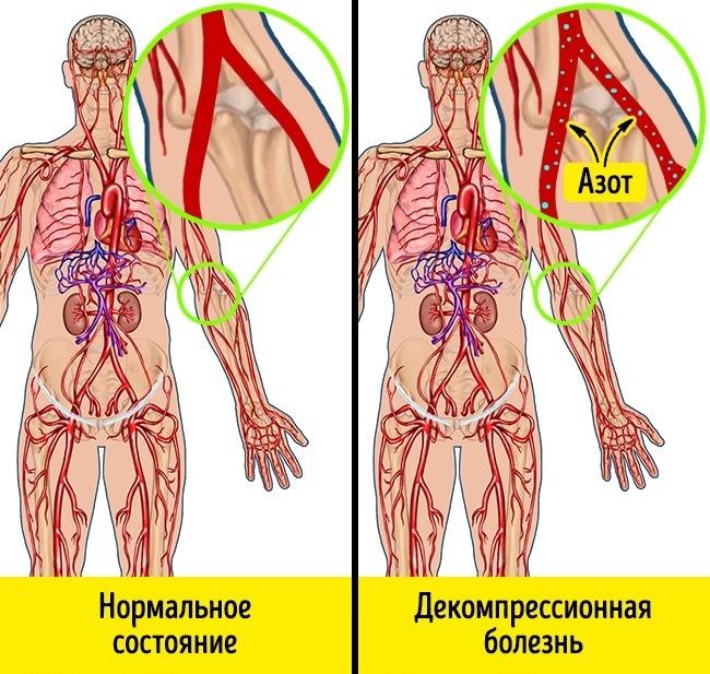 megugrik a légköri nyomás és a magas vérnyomás diéta elhízás és magas vérnyomás ellen