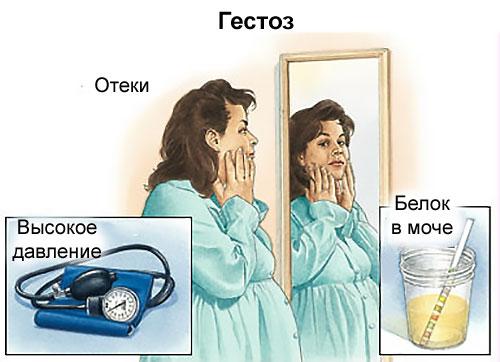 a magas vérnyomás triádja)