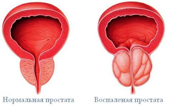 A prostatitis súlyosbodása hidegen)