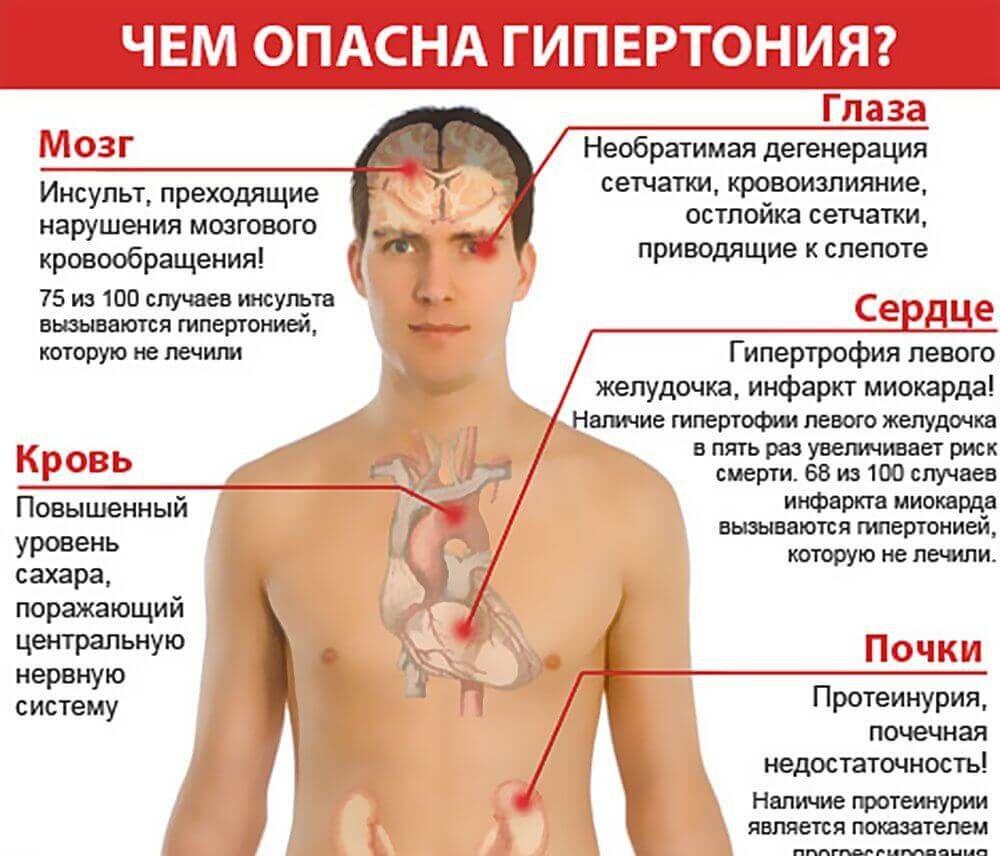 magas vérnyomás és vegetatív vaszkuláris dystonia magas kockázati fokú magas vérnyomás