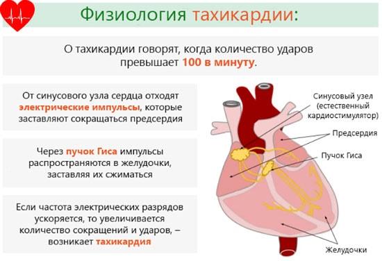 Tachycardia támadás - tünetek, hogyan lehet enyhíteni a támadást