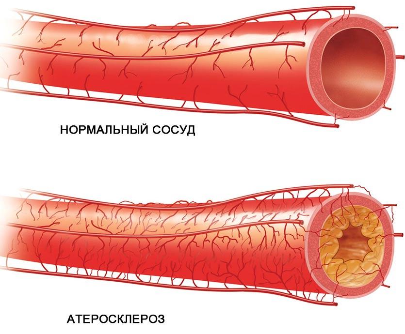 enap n magas vérnyomás esetén