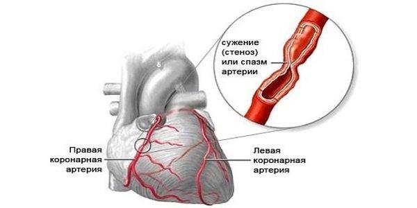 magas vérnyomás raunatin