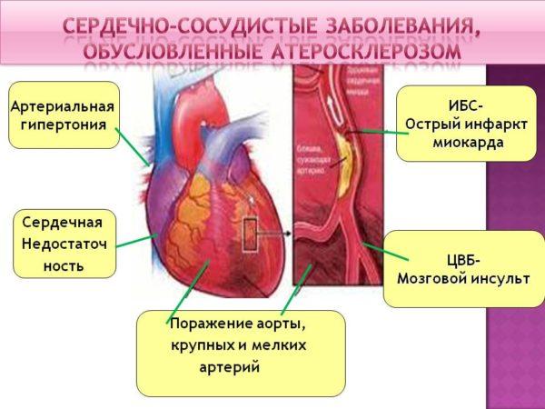 rezerpin hipertónia esetén