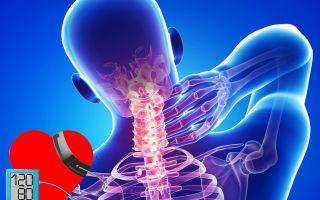 a nyaki gerinc osteochondrosisát és a magas vérnyomást professzor hipertónia nem betegség