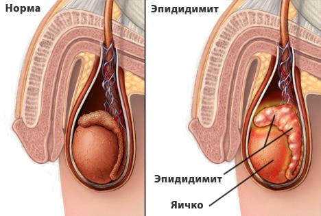 A prosztatagyulladás kezelése Lyubertsy-ben, Prosztatagyulladás Lyubertsy-ban