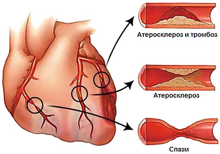 szívkoszorúér-betegséggel dohányzó
