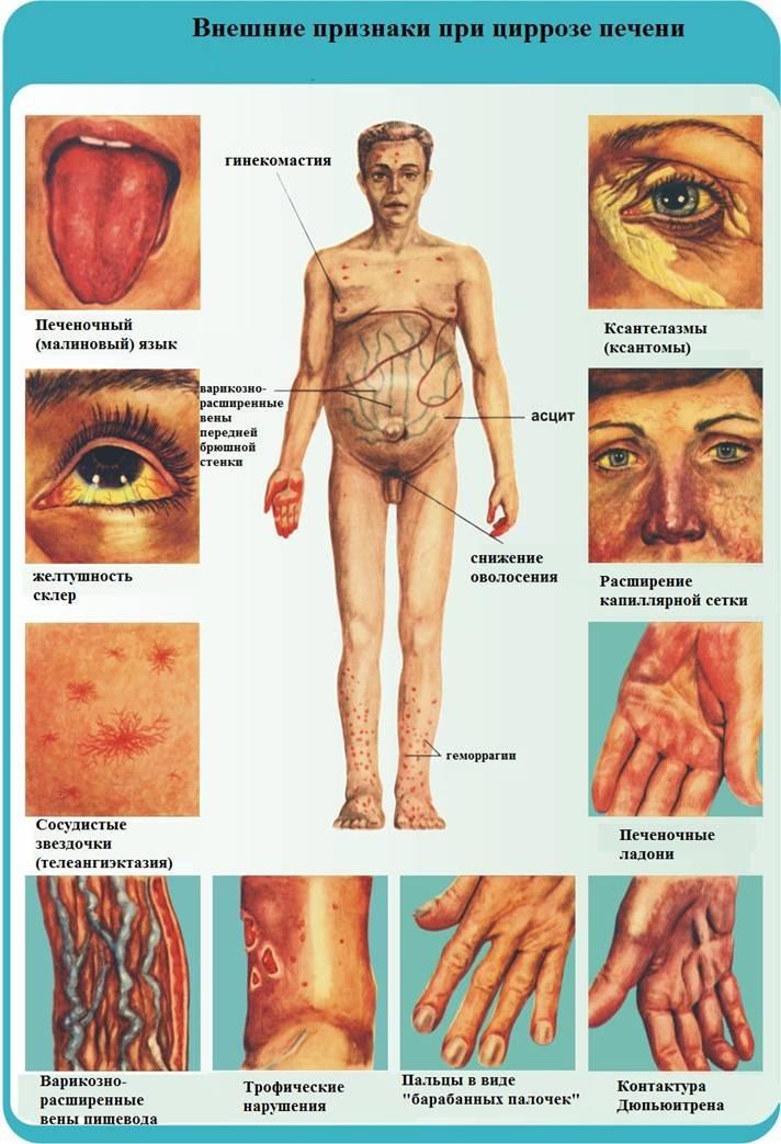 a test méregtelenítésének jelei